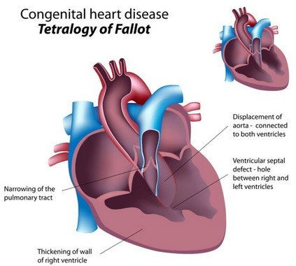 Congenital Heart Disease: No Longer a Mystery