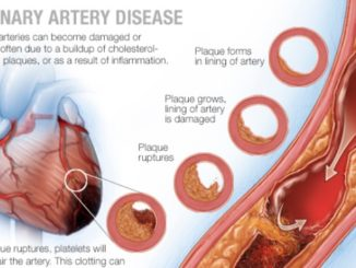 What You Don't Know About Coronary Artery Disease