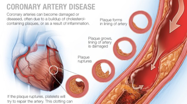 What You Dont Know About Coronary Artery Disease